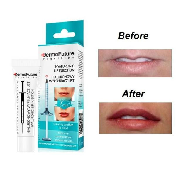 DermoFuture Precision – Hijaluronski filer za usne (12 ml)